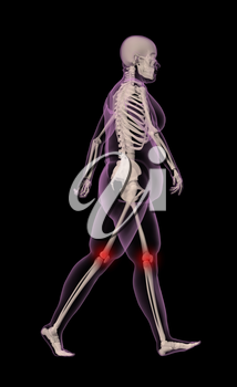 3D render of an overweight female medical skeleton walking with knee joints highlighted