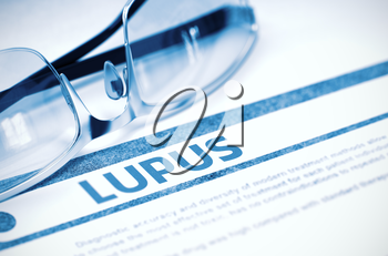 Lupus - Medicine Concept on Blue Background with Blurred Text and Composition of Specs. Lupus - Medicine Concept with Blurred Text and Eyeglasses on Blue Background. Selective Focus. 3D Rendering.