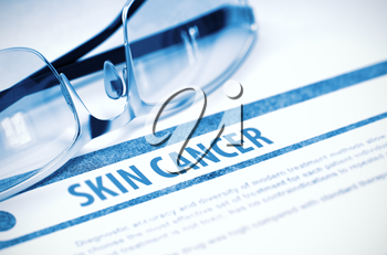 Skin Cancer - Medical Concept on Blue Background with Blurred Text and Composition of Eyeglasses. 3D Rendering.