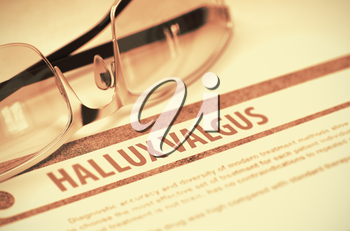 Diagnosis - Hallux Valgus. Medical Concept on Red Background with Blurred Text and Pair of Spectacles. Selective Focus. 3D Rendering.