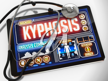 Kyphosis - Diagnosis on the Display of Medical Tablet and a Black Stethoscope on White Background.
