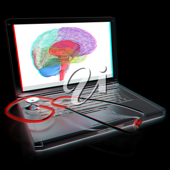 Laptop, brain and Stethoscope. 3d illustration. Anaglyph. View with red/cyan glasses to see in 3D.